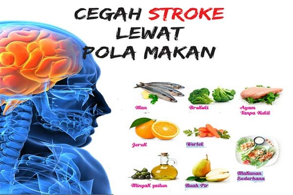Cegah Stroke Lewat Pola Makan Sehat