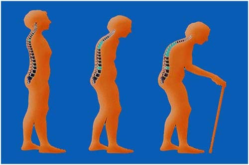 Osteoporosis (Pengeroposan Tulang)