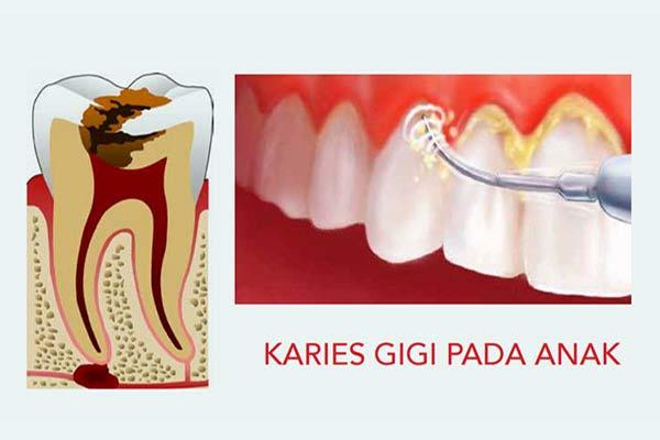 Rampan Karies Gigi Pada Anak