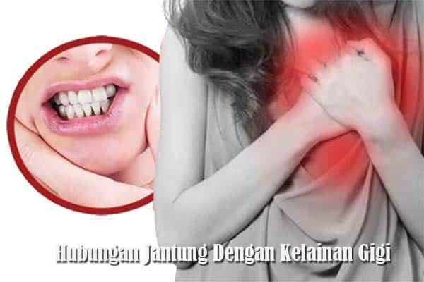 Jantung Dan Kelainan Pada Gigi