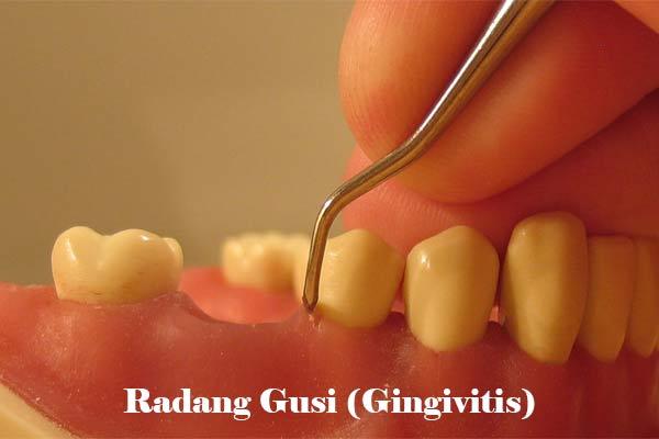 Radang Gusi (Gingivitis)