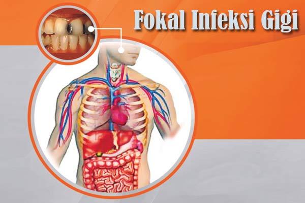 Gigi Sebagai Sumber Fokal Infeksi