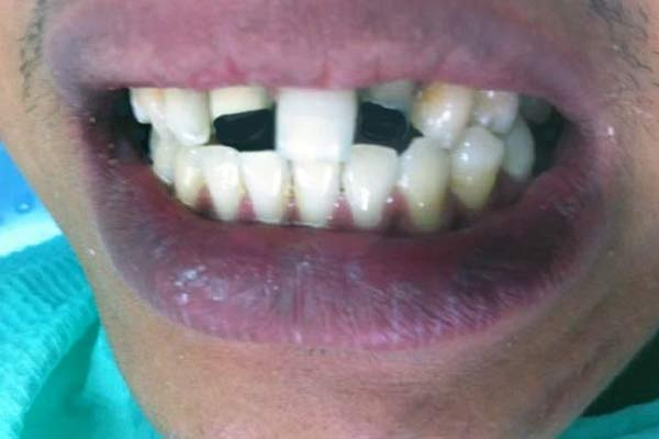 Penanganan Gigi Patah (Fraktur)