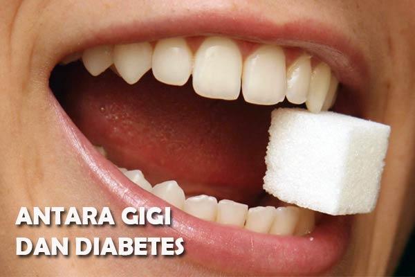 Hubungan Kesehatan Gigi Dengan Diabetes Mellitus