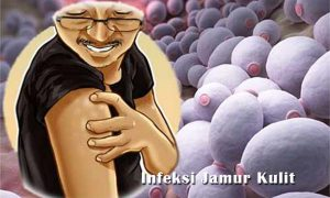 Penyakit Infeksi Jamur Kulit