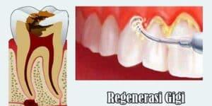 Terapi Regenerasi Gigi