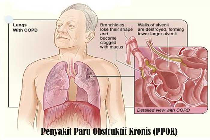 Penyakit Paru Obstruktif Kronis (PPOK)