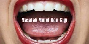 Kelainan Mulut Dan Gigi