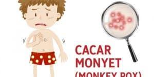 Penyakit cacar monyet (Monkey Pox)