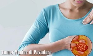 tumor mamae di payudara wanita